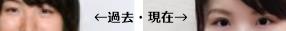 山口恵梨子女流二段目アイプチ