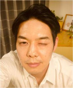 鈴木知事 眼帯