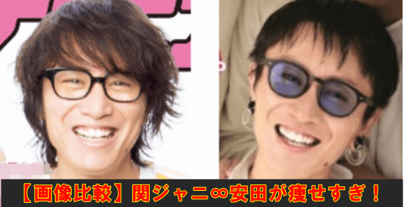 関ジャニ 安田 痩せ